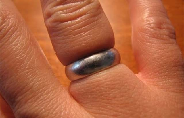 Отек пальца из за кольца
