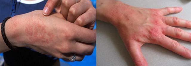 Аллергическая реакция и зуд