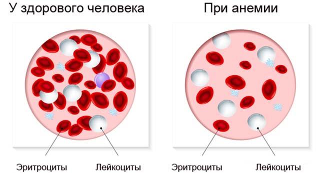 Эритроциты и лейкоциты