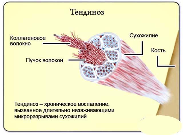 Тендиноз локтя