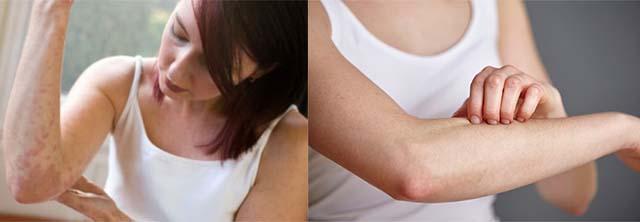 У девушки аллергия на руках и зуд