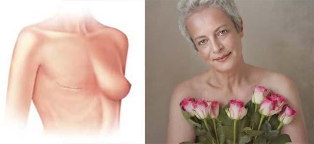 Мастэктомия и женщина с розами