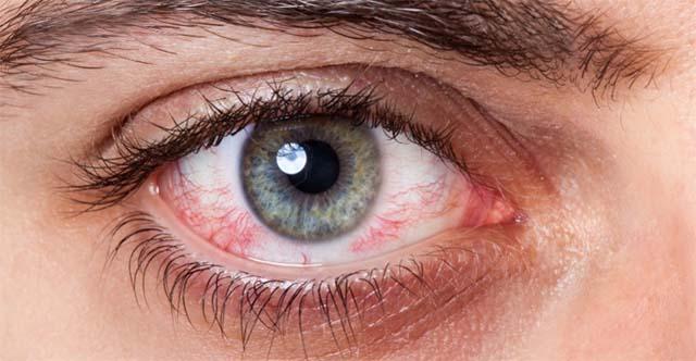 Макулярный отек сетчатки глаза
