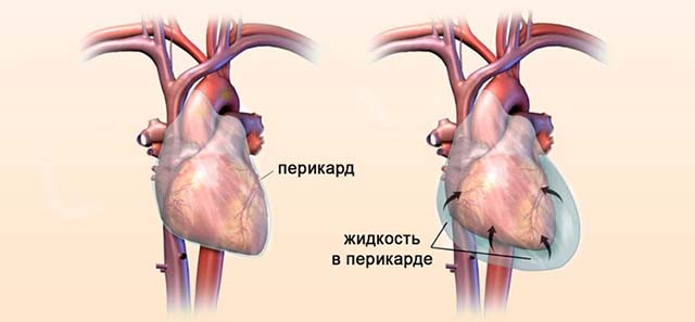 Перикард и здоровое сердце