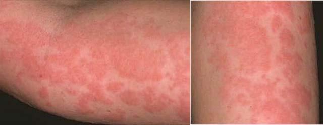 Аллергия в виде пятен на руках
