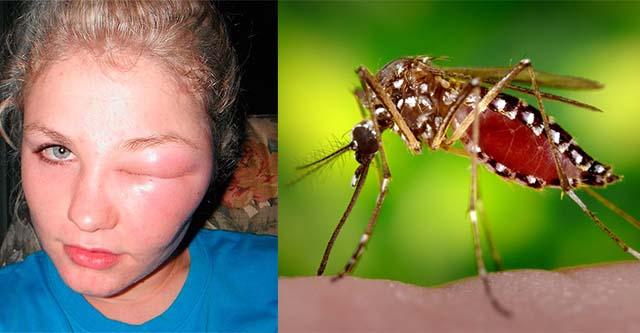 Отек на лице от насекомого