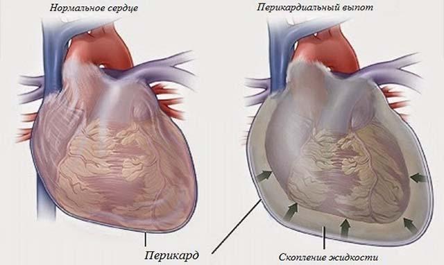 Скопление жидкости в сердце