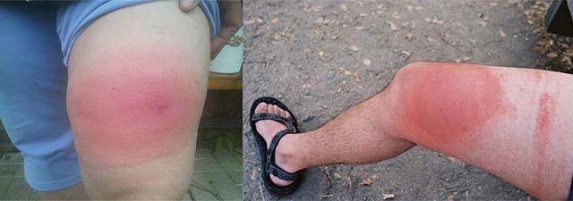 Отек ног после укуса слепня