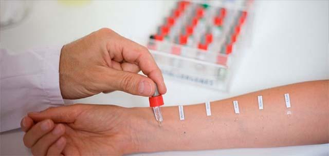 Тест на аллергические реакции