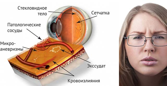 Девушка в очках и сетчатка глаза