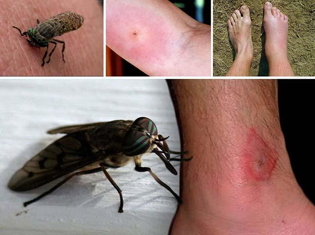 Следы от кровососущих насекомых