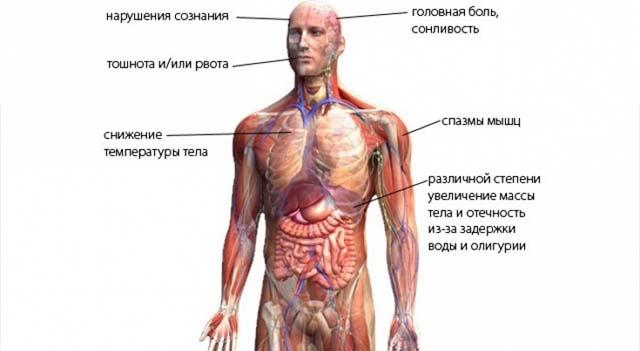 синдром Пархона и его признаки