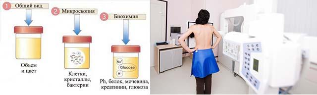 Анализ мочи и рентген грудной клетки
