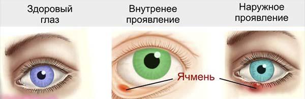 Ячмень на веке глаза