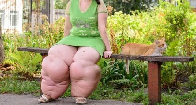 Девушка с лимфостазом ног