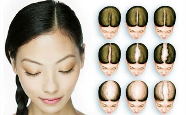Этапы выпадения волос