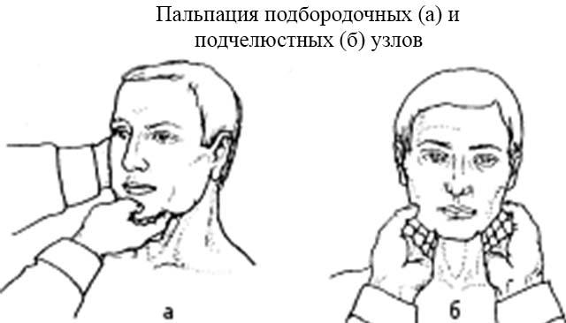 Пальпация подбородочный и подчелюстных лимфатических узлов