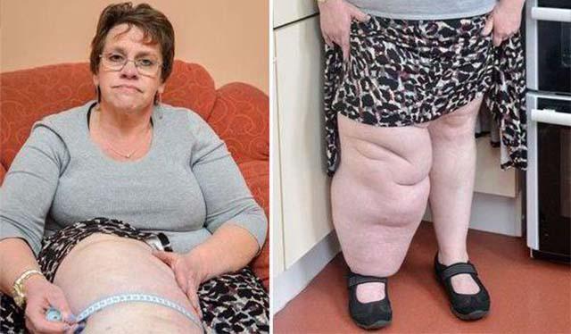Женщина со слоновостью ног