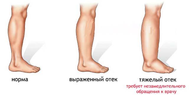 Стадии отека ног