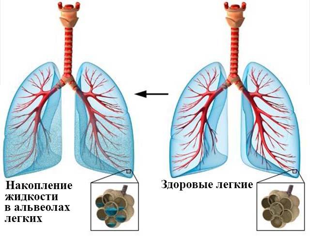 Жидкость в альвеолах легких