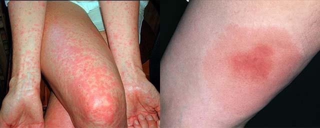 Аллергическая реакция на яд насекомых