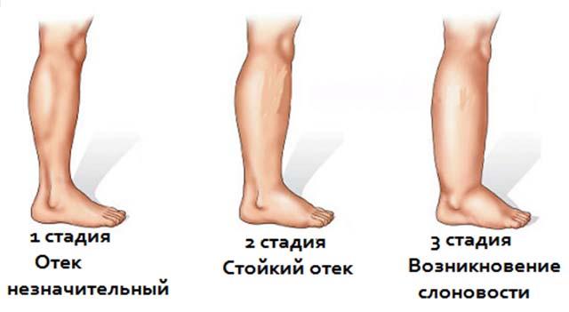 Стадии лимфостаза