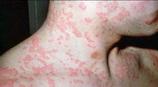 У мужчины сильная аллергия