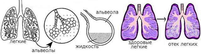 Схема отека легких