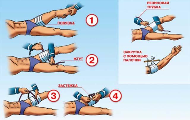 Наложение венозных жгутов