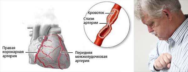 Спазм сердечных сосудов