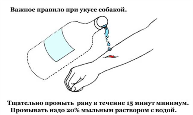 Обработка раны после укуса