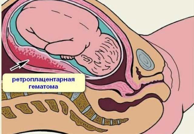 Ретроплацентарная гематома