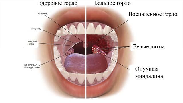 Налет на миндалинах