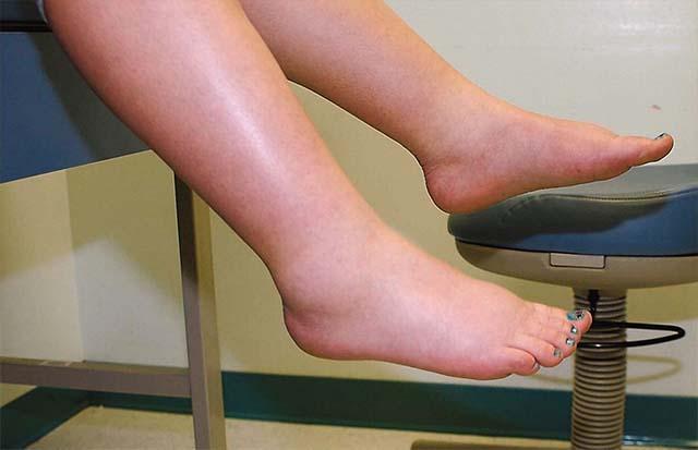Опухших ноги