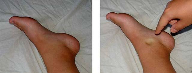 Проверка отека на ноге