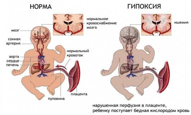 Гипоксия эмбриона