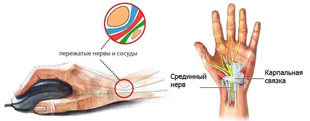 Туннельный синдром кистей