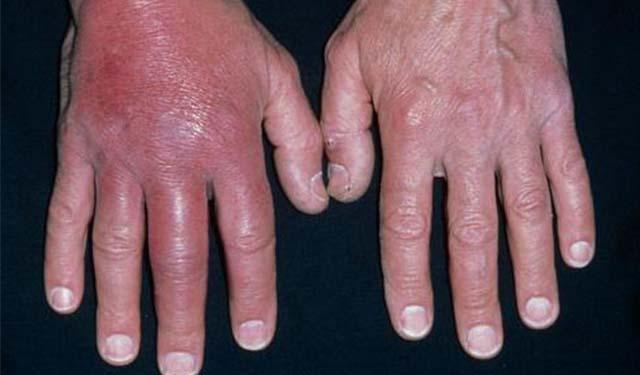 рожистое воспаление руки