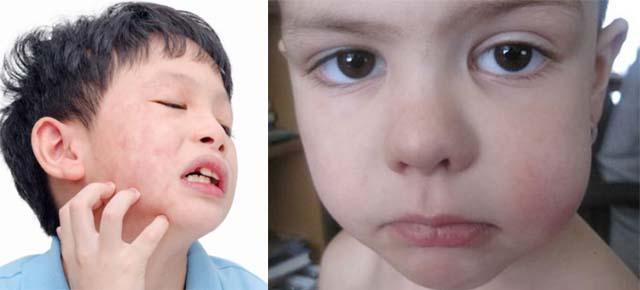 У детей зуд и опухла щека