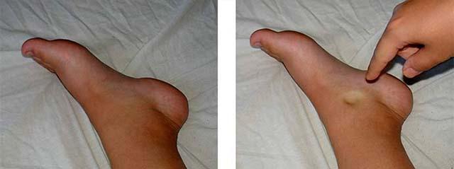 След от пальца на ноге