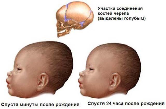 Участки соединения костей черепа