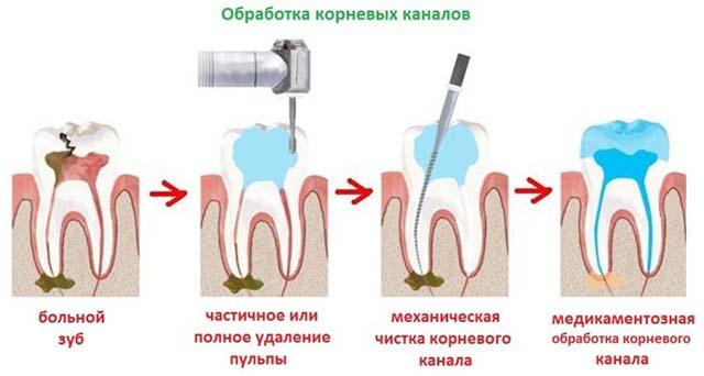 Обработка корневого канала