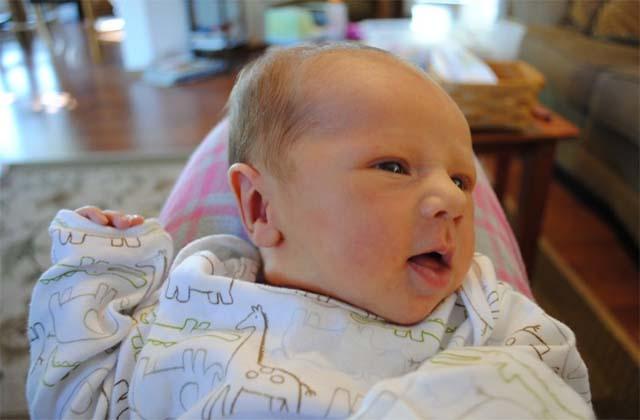 Деформация головки у новорожденного