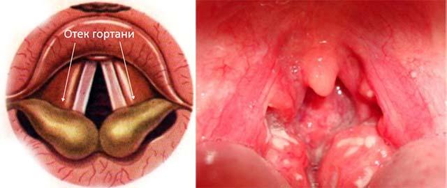 Инфекционный отек горла