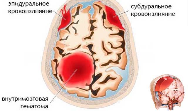 Виды кровоизлияния в мозг