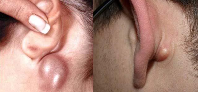 Лимфатический отек уха