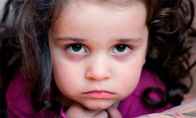 У девочки синяки под глазами