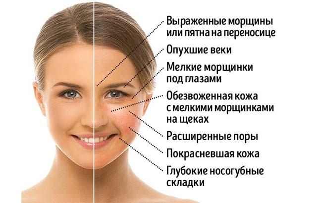 Симптомы отека лица