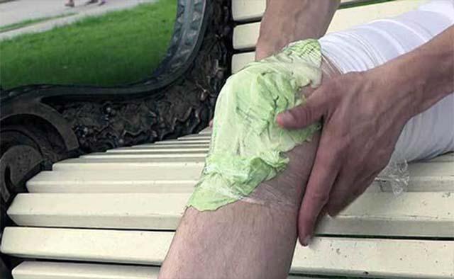 Компресс на колено из капустного листа