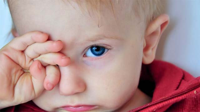 Мальчик натирает глаз